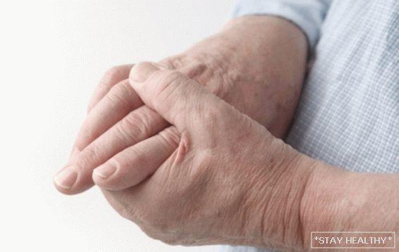 Nagyon fáj, és néha ropog – a csukló ínhüvelygyulladása