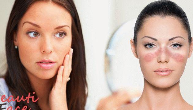 hogyan lehet megszabadulni az arcán lévő vörös foltoktól otthon
