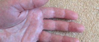 hogyan lehet eltávolítani a kezén lévő vörös foltokat)